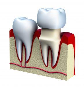 suffolk county dental crown