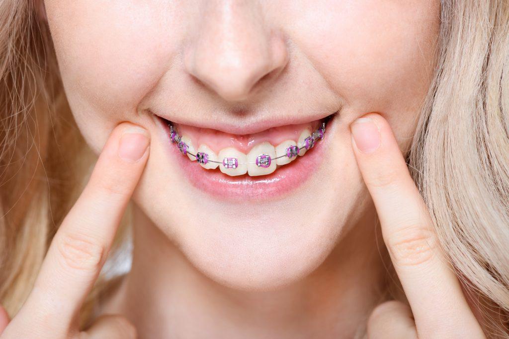 long island orthodontist